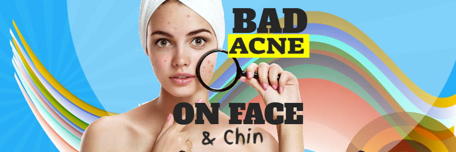 Bad acne on face and chin featured image